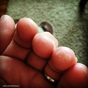 guitar roadblocks - sore fingers